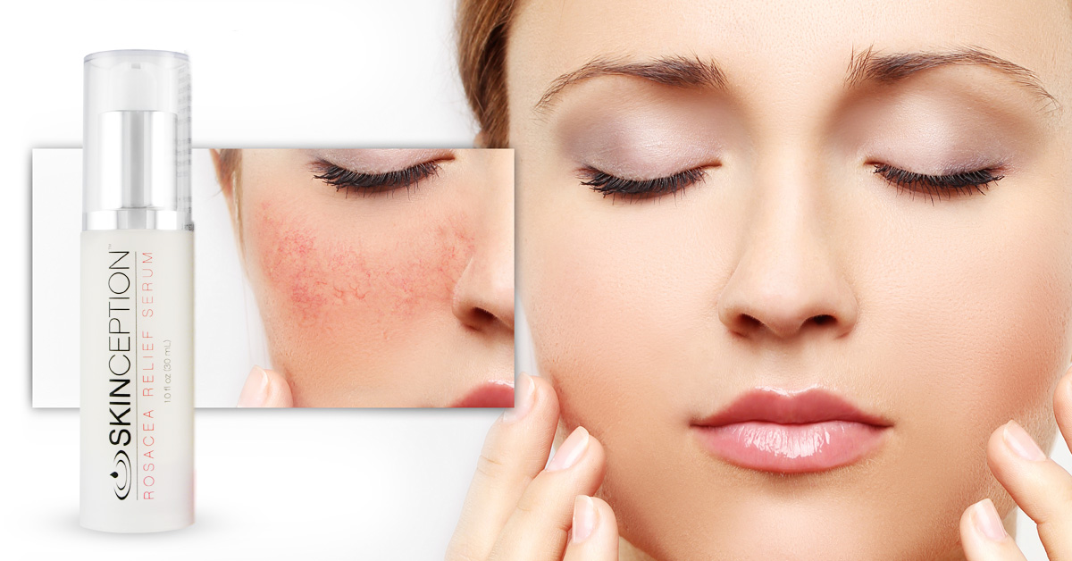 Rosacea Symptoms and Solutions