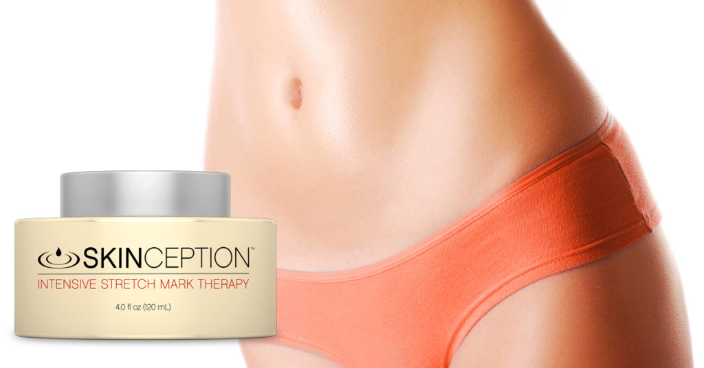 Why Stretch Marks Form and How to Reduce Them